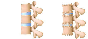 The osteochondrosis lumbar